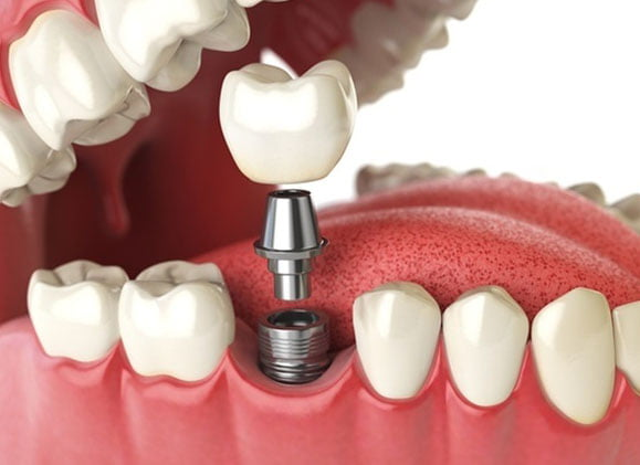 Dental Implant JB